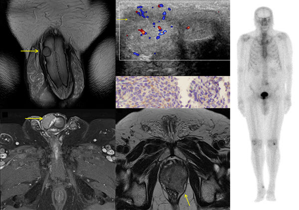 Archives Of The Journal Of Radiology Case Reports intended for Case In Point Archives Radiology