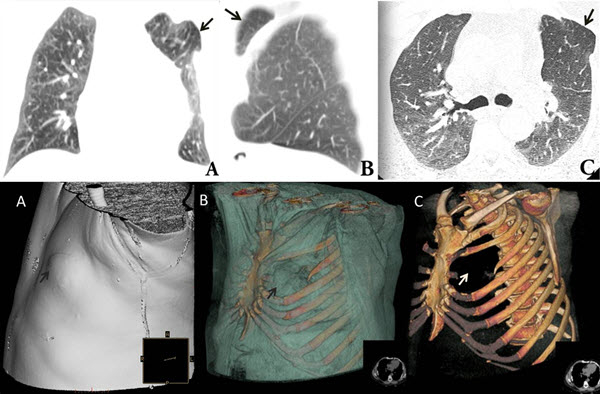 Archives Of The Journal Of Radiology Case Reports With Case In Point Archives Radiology