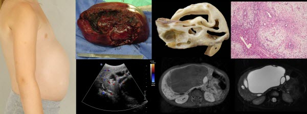Archives Of The Journal Of Radiology Case Reports Within Case In Point Archives Radiology